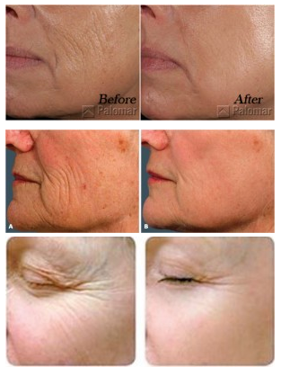 Fractional Laser Before and after